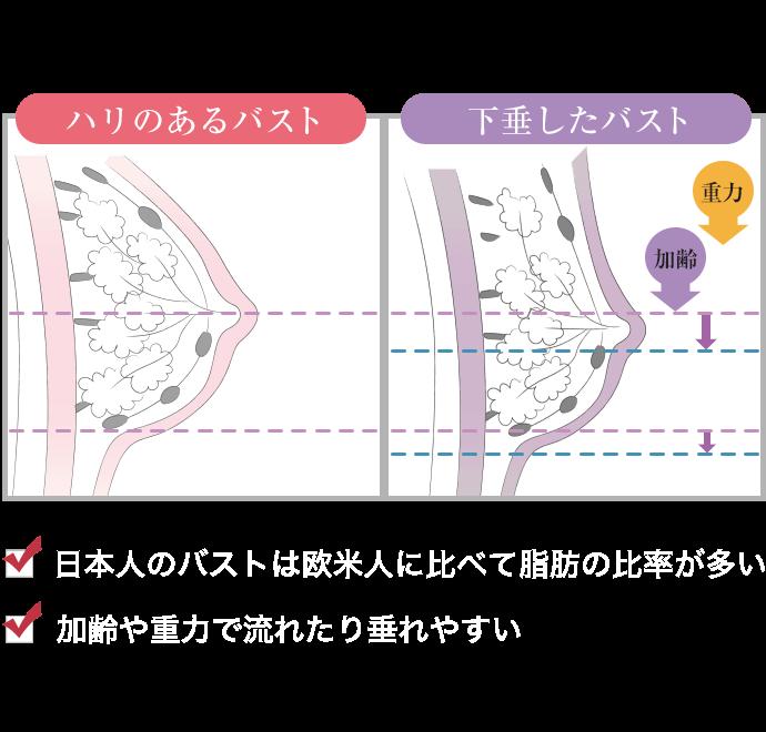 ・日本人のバストは欧米人に比べて脂肪の比率が多い・カレイや重力で流れたり垂れやすい